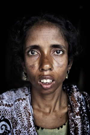 Photograph@Taslima Akhter    Asma (25), who was rescued from Rana Plaza, still has trouble sleeping. She says she resorted to drinking another worker's urine to avoid dehydration while trapped in the rubble. Savar, Dhaka, Bangladesh. 1st June 2013